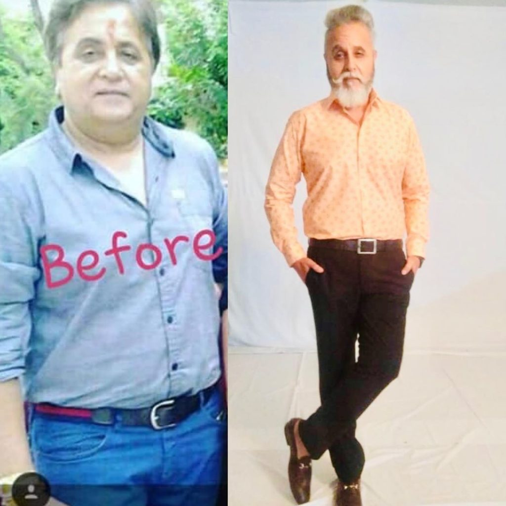 Dinesh Mohan before and after